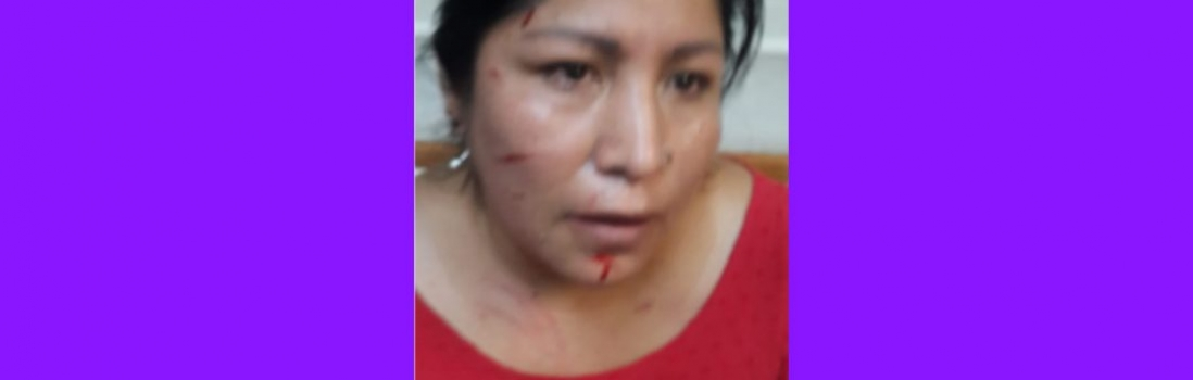La UTE repudia enérgicamente las agresiones sufridas por Martha Mamani y María Elena Buñon